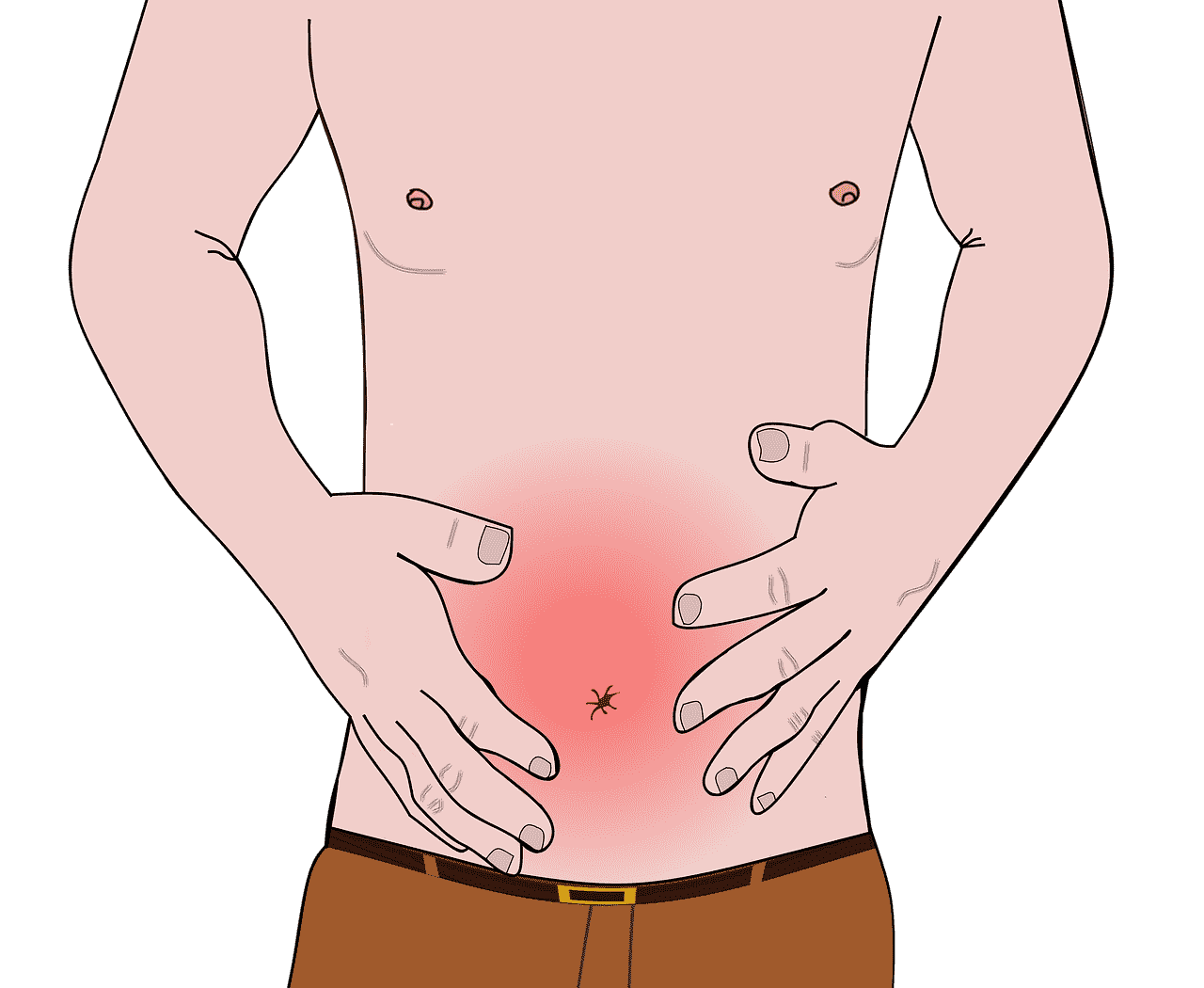 Causes and Reasons for hiatal hernia