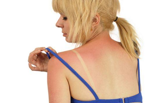 Sunburn - petroleum jelly