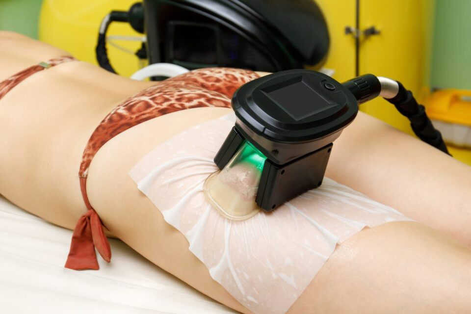 coolsculpting-is-the-most-trusted-non-surgical-fat-reduction-treatment