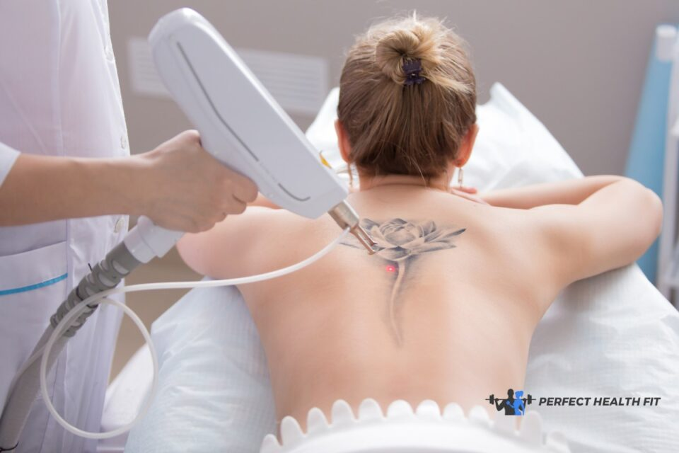 8 Things You Need To Know About Tattoo Removal