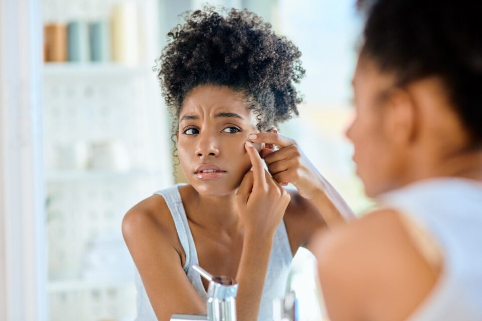 The Importance Of Getting Acne Treatment For Teens